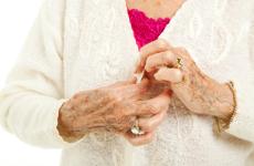 A reumás ízületi gyulladás és a cöliákia - gluténérzékenység kapcsolata