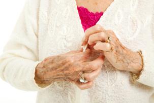 Reumás ízületi gyulladás - reumatoid arthritis gakran járhat együtt cöliákiávalis.