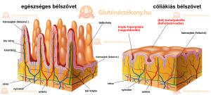 Az egészséges és cöliákis bélszövet összehasonlítása