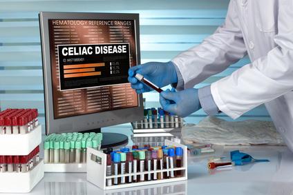 szeronegatív cöliákia, gluténérzékenység vizsgálat, cöliákia teszt