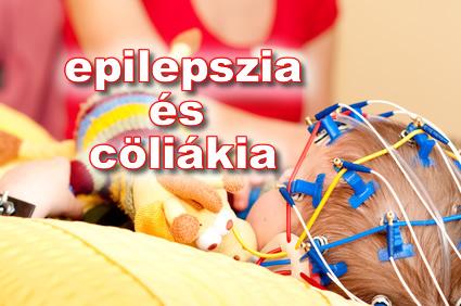 epilepszia és cöliákia